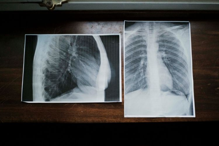 2-lastra-saturazione-polmonare-covid-positivity